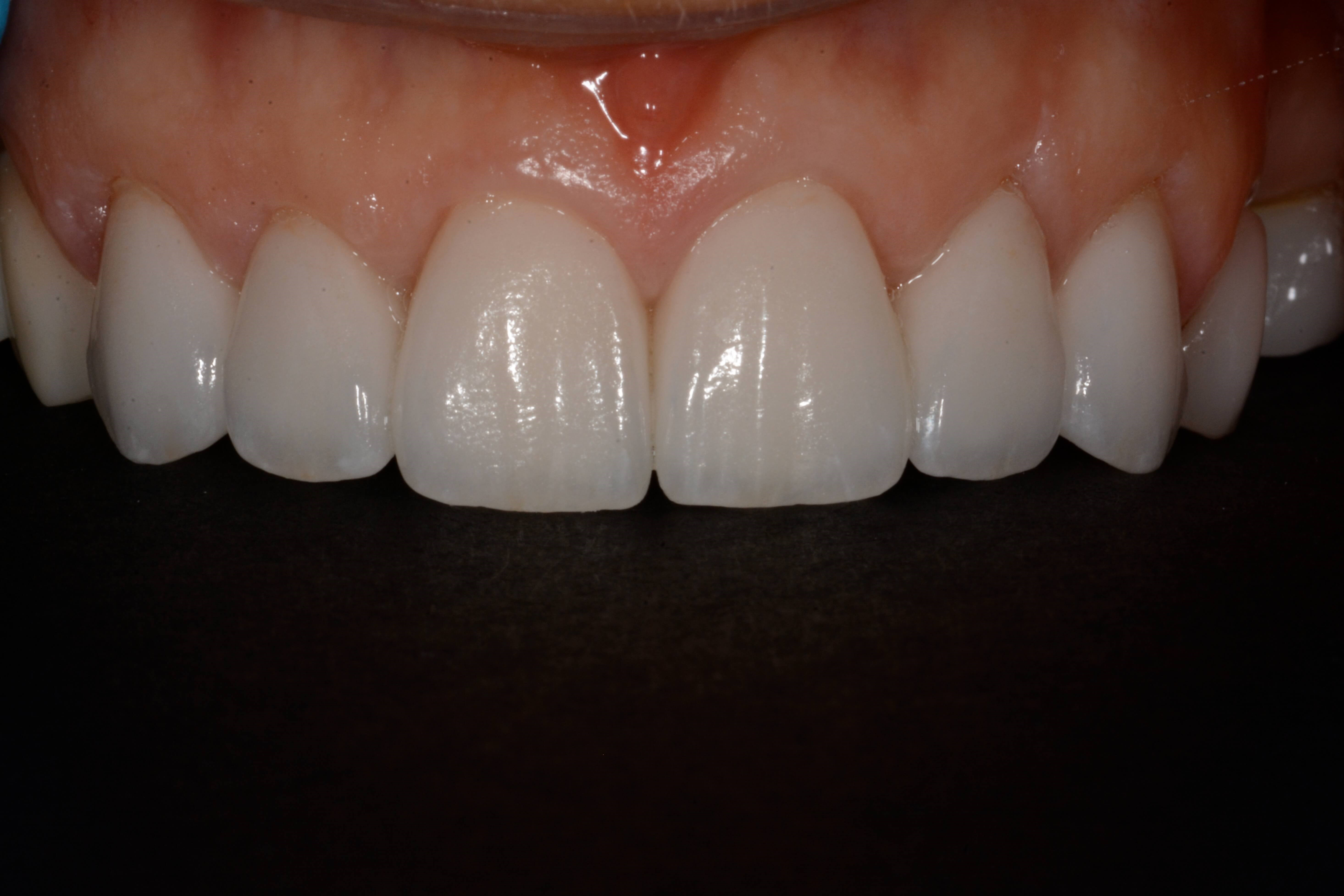 Severe Wear and chipped teeth After