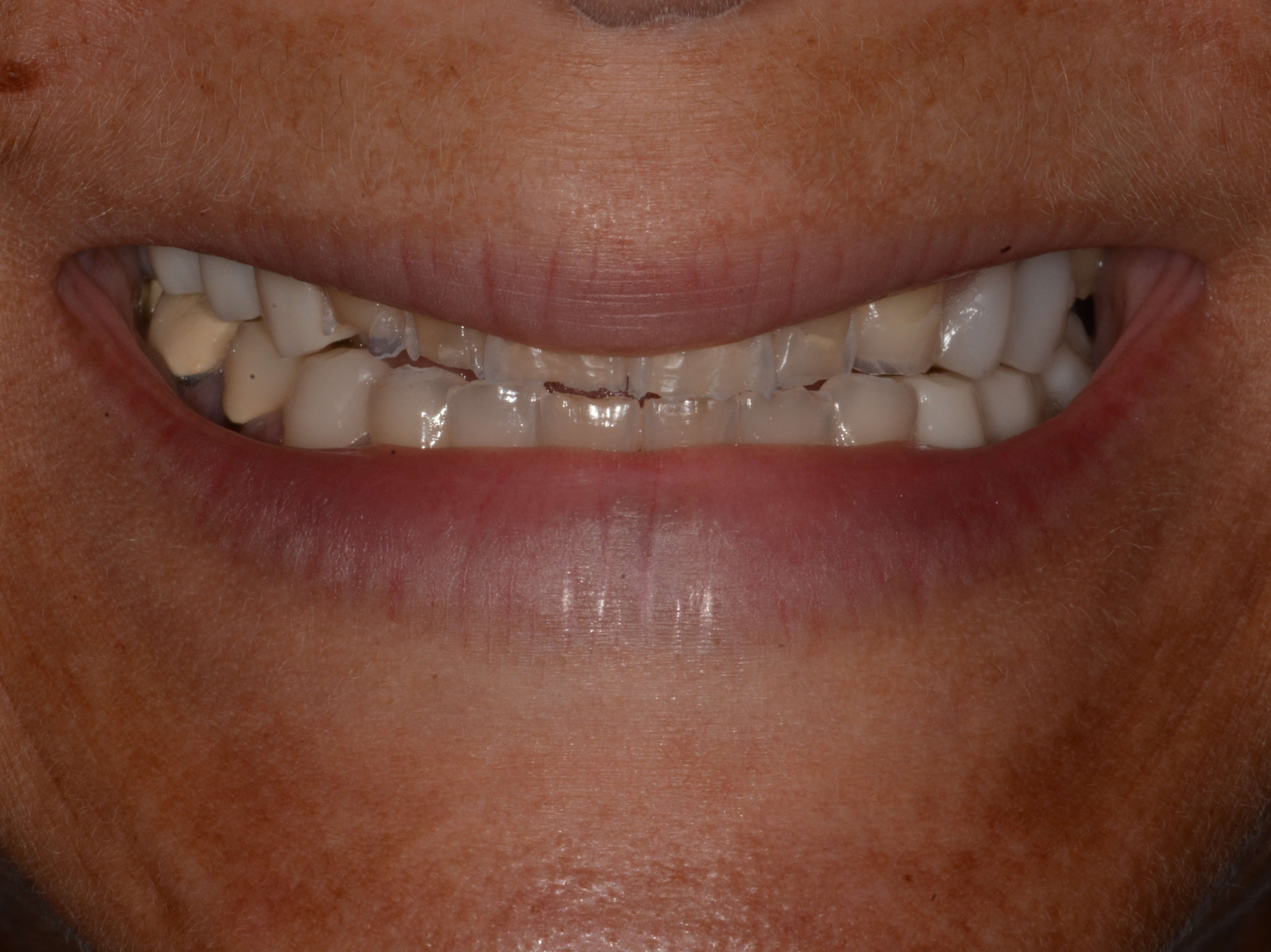 Severe Wear and chipped teeth Before