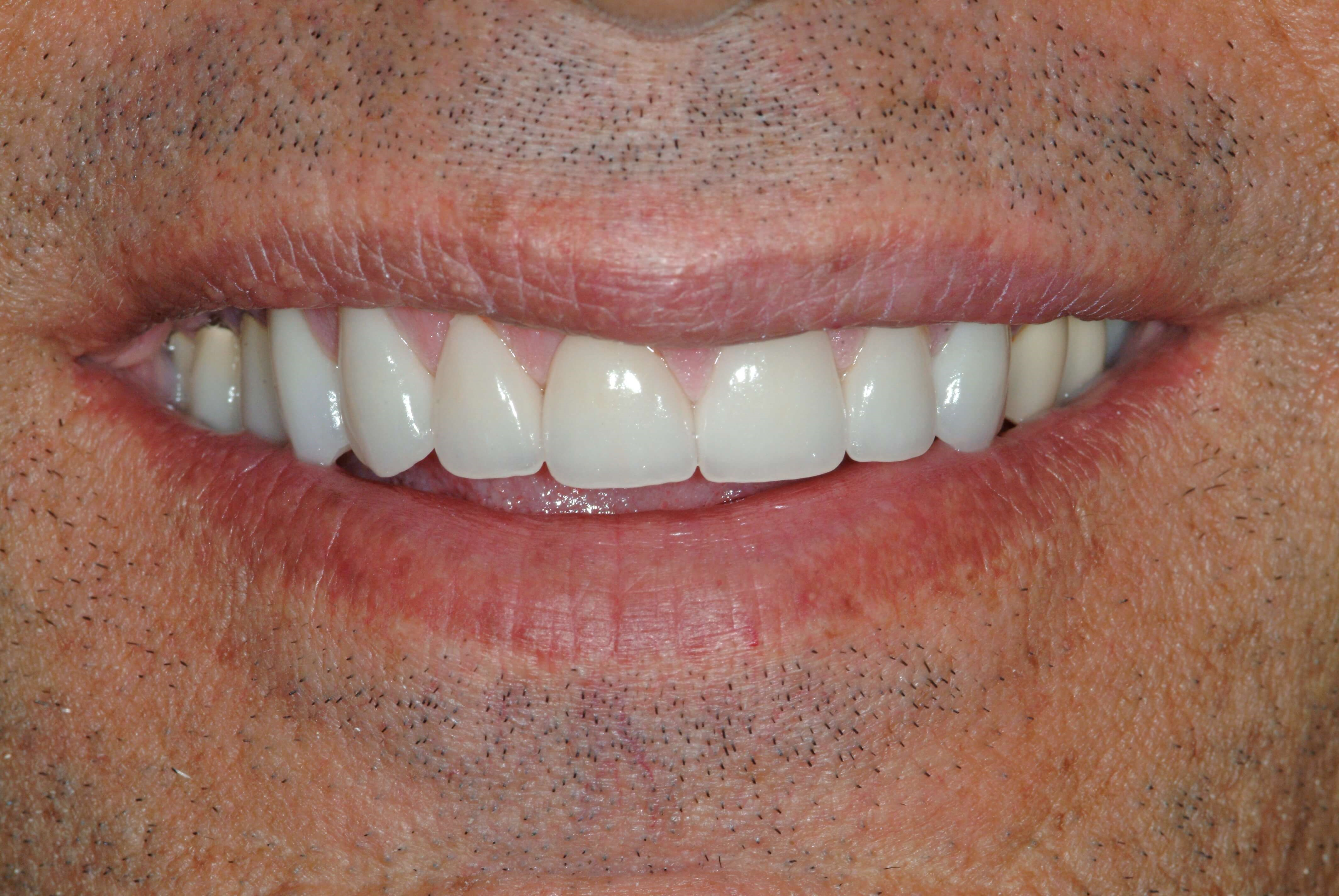 Worn down teeth After