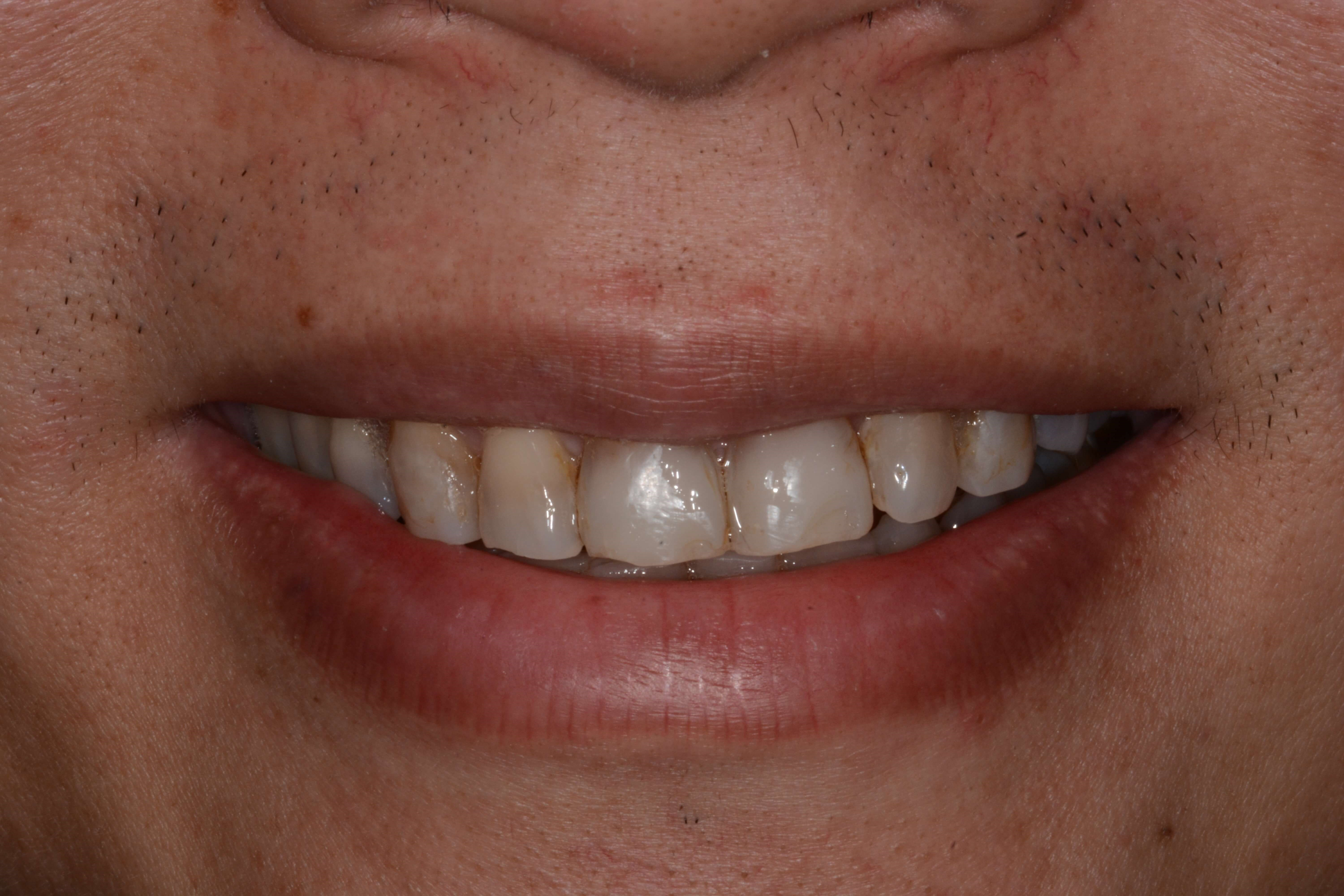 Smile view Before