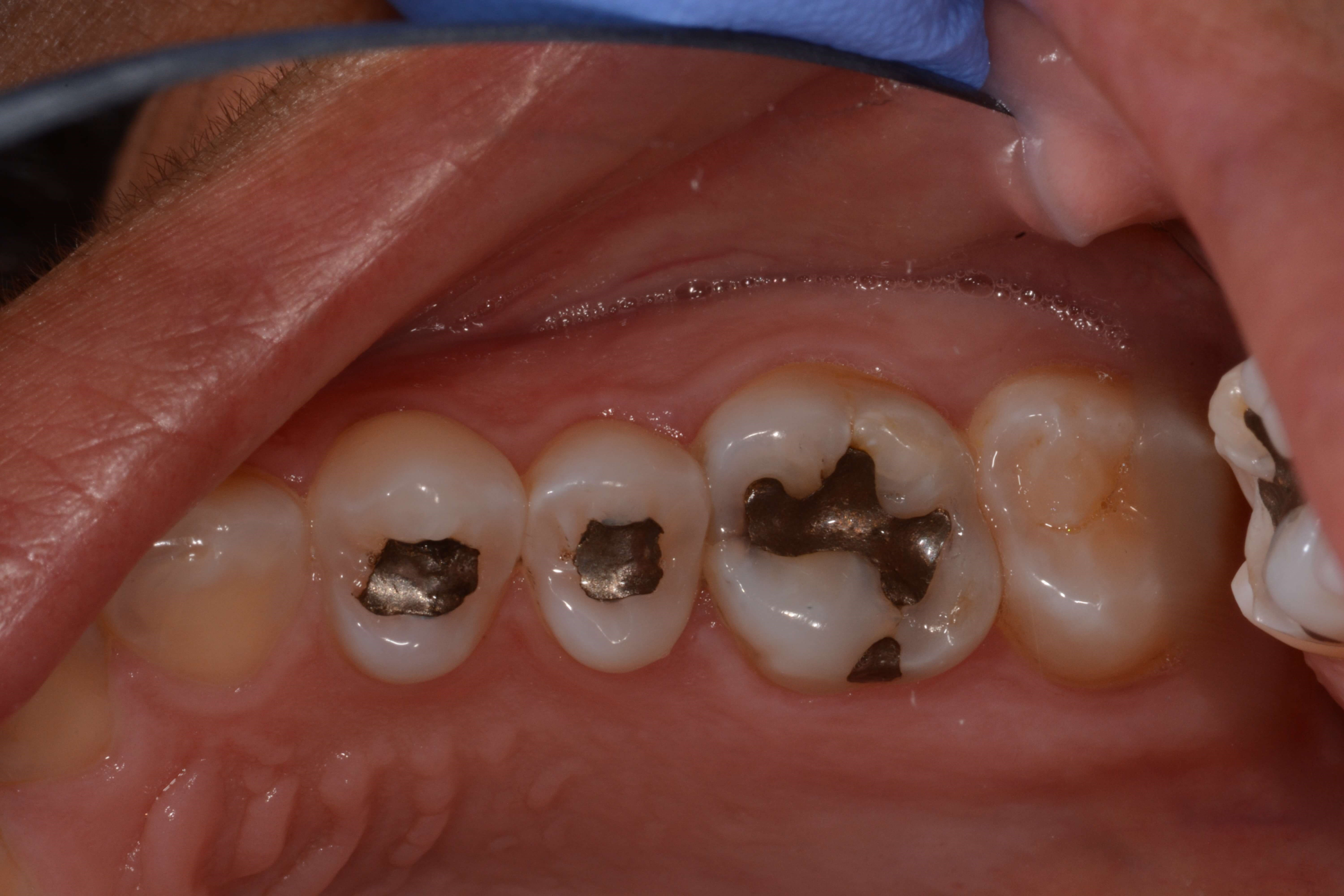 Occlusal View Before