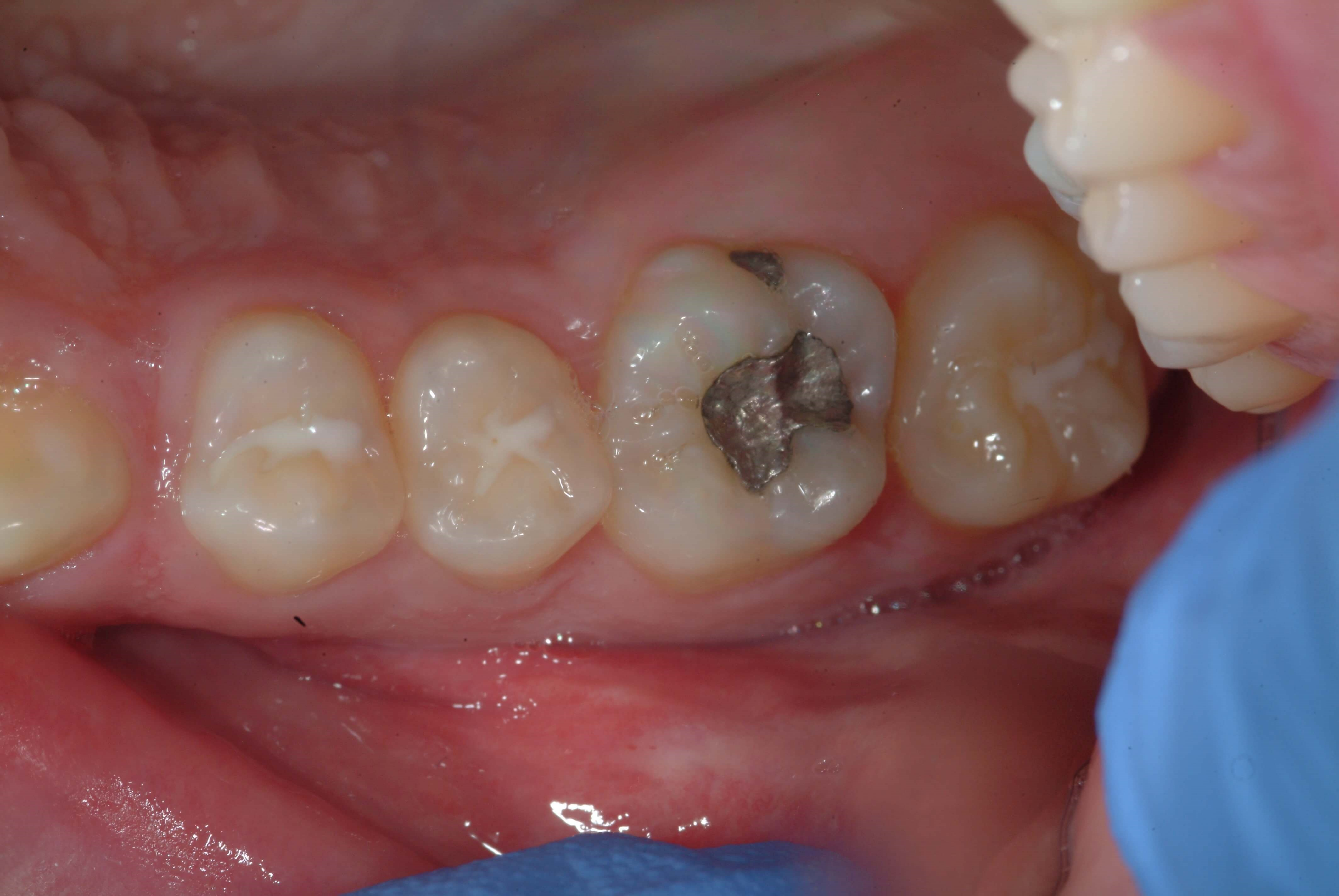 Same Day Dentistry Before