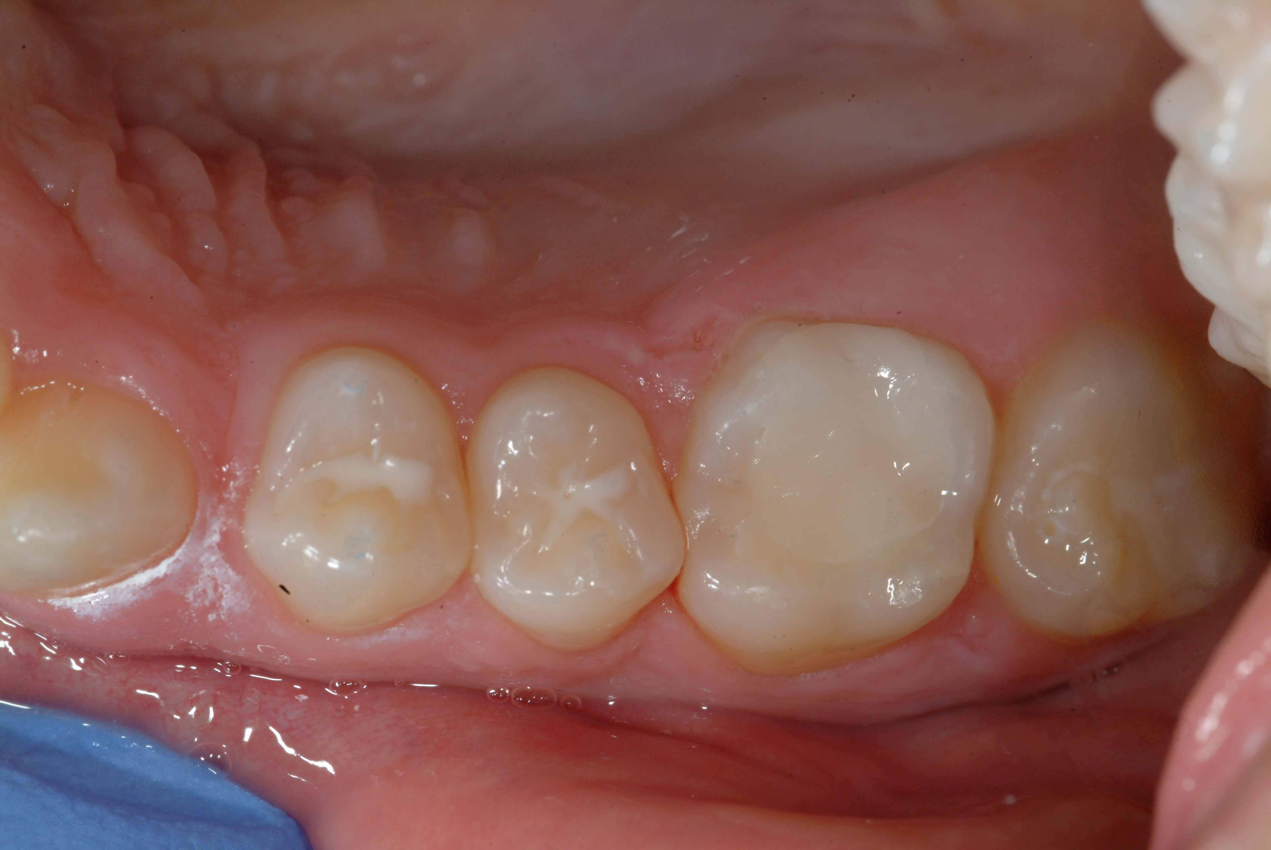 Same Day Dentistry After